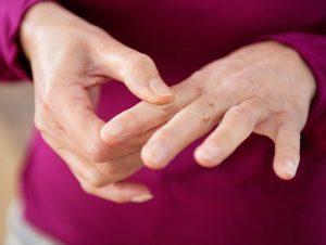 درمان بیماری روماتیسم در طب سنتی