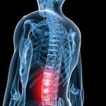 درمان گودی کمر با ورزش کردن