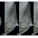 ماموگرافی در خانم ها کی انجام شود؟