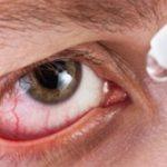 درمان خشکی چشم با این روش
