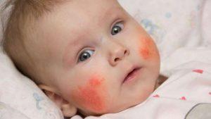 نشانه های آلرژی در نوزادان